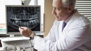 Help from an endodontist in houston