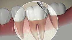 77074 Endodontist